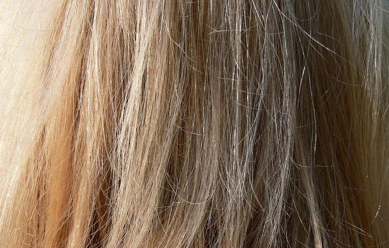 Jak vybrat šampon proti lupům + 10 nejlepších šamponů